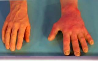 Холодовая аллергия на руках – симптомы, диагностика, лечение аллергии на холод