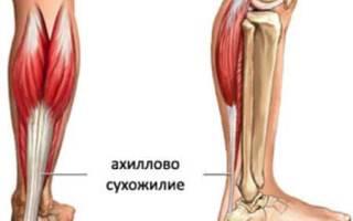 Функции и болезни ахиллова сухожилия (пяточного)