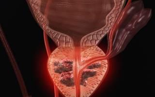 Аденоматозная гиперплазия