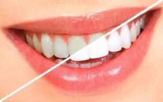 Как легко и эффективно отбелить зубы в домашних условиях