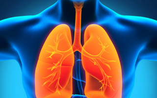 Как выглядит пневмония на рентгеновских снимках?