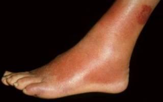 Рожистое воспаление ноги: основные симптомы и лечение на дому методами современной и народной медицины