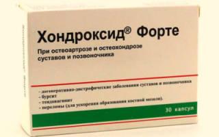 Причины и лечение препаратами боли в спине в области поясницы в домашних условиях