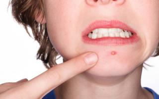 Особенности крема от прыщей на лице