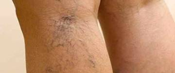 Лечение варикозного расширения вен на ногах мазью