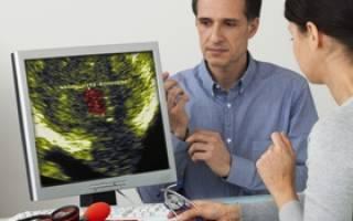 Методы лечения рака простаты