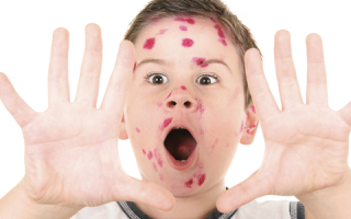 Увеличение лимфоузлов при ветрянке у детей