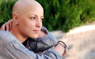 Симптомы и лечение рака бронхов