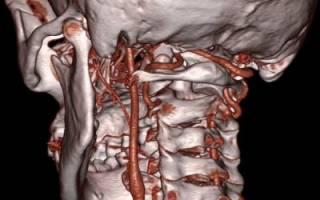 Симптомы и лечение головокружения при остеохондрозе шейного отдела позвоночника