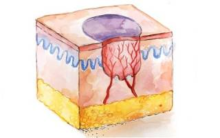 Что представляет собой контагиозный моллюск