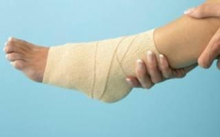 Как вылечить опухоль голеностопного сустава и снять боль в ноге?