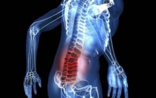 Симптомы заболевания и лечение люмбалгии вертеброгенной поясничного отдела позвоночника