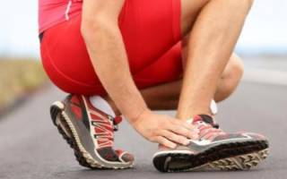 Симптомы и лечение плантарного фасциита стопы