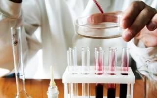 Какие анализы нужно сдать на глисты?