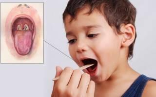 Как делать прививки от полиомиелита и АКДС одновременно: возможные реакции и последствия?