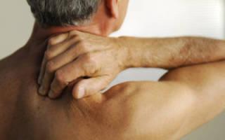 Лечебное действие иглотерапии при остеохондрозе шейного отдела