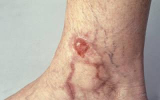 Симптомы и лечение трофические изменения кожи при варикозе народными средствами