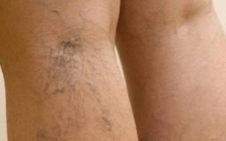 Лечение сосудистой сетки на ногах