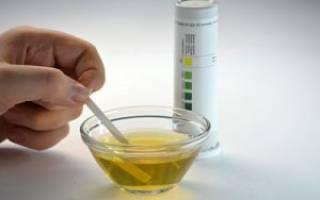 Причины отклонений от нормы сахара в моче у женщин