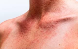Что делать, если возникла аллергия на солнце