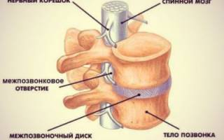 Каковы признаки корешкового синдрома шейного отдела позвоночника и методы лечения патологии