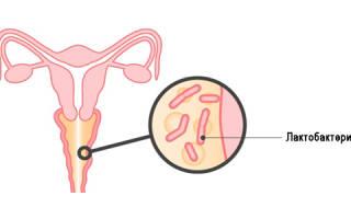 Диагностика и лечение гарднереллеза (бактериального вагиноза)