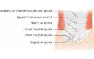 Как проводится операция грыжи белой линии живота?