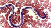 Лимфатический филяриоз, в чем опасность для человека?