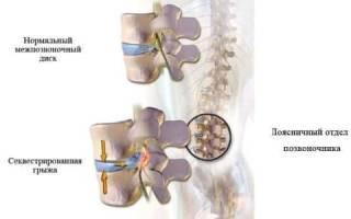 Что такое секвестрированная грыжа позвоночника? Симптомы и лечение