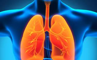 Основные виды туберкулеза легких