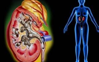Правильное питание при мочекаменном заболевании