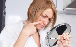 Что делать  если возникает аллергия на косметику?