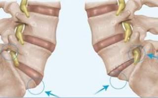 Симптомы и лечение спондилолистеза поясничного отдела позвоночника