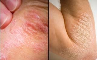 Кожное заболевание псориаз: причины, симптомы и методы лечения