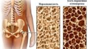 Диагностика остеопороза: лабораторные анализы, маркеры, виды обследований и тесты