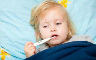Сыпь у ребенка при кори: что делать?