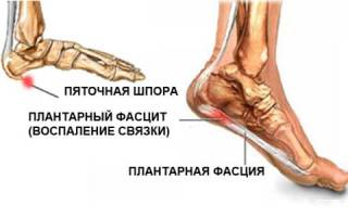 Как правильно выбрать ортопедические подпяточники для мужской и женской обуви?