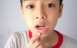 Как вылечить стоматит у детей в домашних условиях