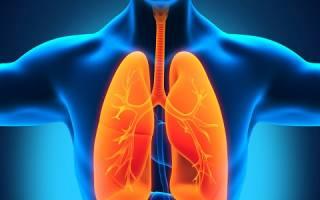 Причины развития плеврита осумкованного и его лечение