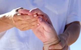 Причины, симптомы, диагностика и лечение артрита