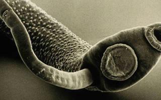 Могут ли гельминты выходить через рот?
