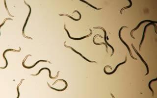 Чем опасны круглые черви?