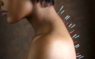 Как действует иглоукалывание (иглорефлексотерапия) при остеохондрозе