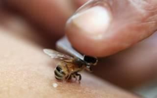 Лечение остеохондроза укусами пчёл (апитерапией)