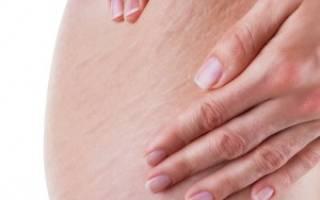 Профилактика и лечение растяжек во время беременности: знать и предотвратить
