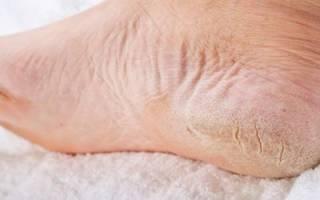 Причины появления трещин на пятках и современные методы лечения в домашних условиях