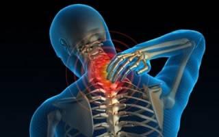 Симптомы и лечение компрессионной миелопатии шейного отдела позвоночника
