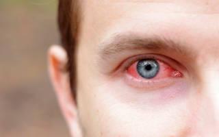 Как бороться с неприятным ощущением в глазах?