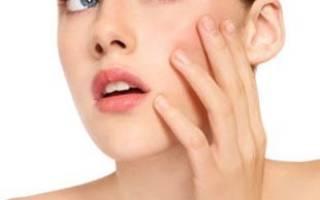Аллергия на коже – симптомы и типы аллергических проявлений на коже