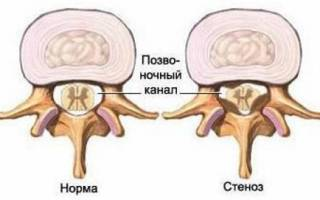 Что такое стеноз позвоночного канала
